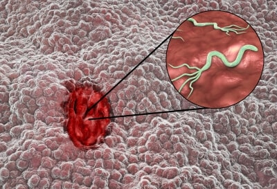 Helicobacter pylori test
