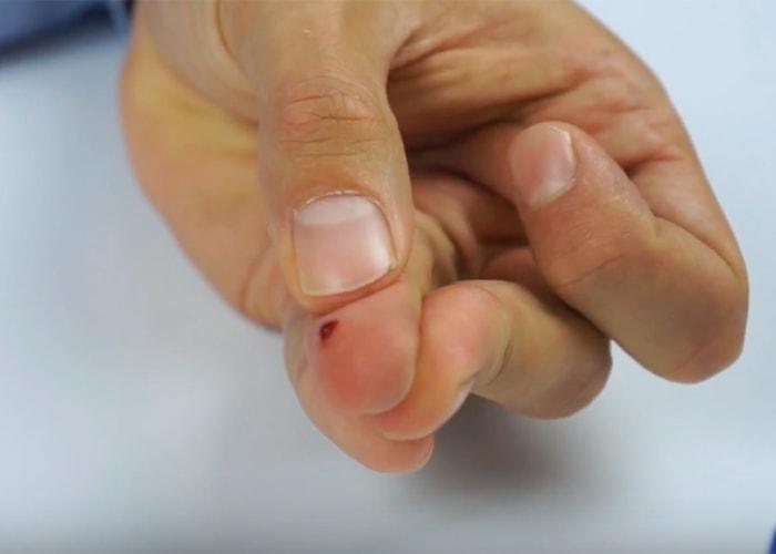 kropla krwi po nakłuciu palca
