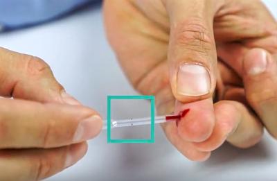 Jak prawidłowo pobrać krew do pipety