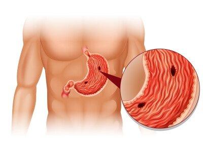 objawy wrzodów żołądka