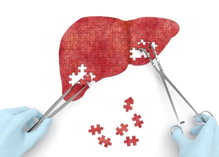 diagnostyka chorób wątroby