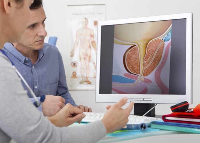 prostata baza wiedzy labhome