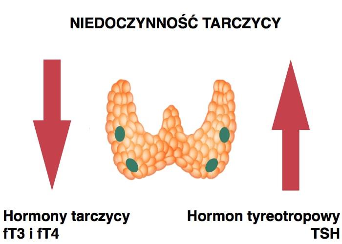niedoczynność tarczycy a poziom hormonów