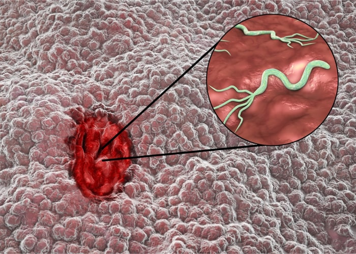 BakteriaHelicobacter pylori