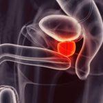 co to jest prostata