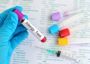 Badania alergiczne z krwi