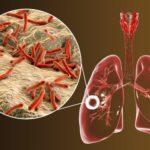 CRP infekcje bakteryjne