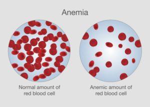 ferrytyna a anemia